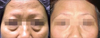Lower Eyelid(Blepharoplasty) Surgery before 650500
