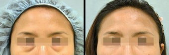 Lower Eyelid(Blepharoplasty) Surgery before 650652