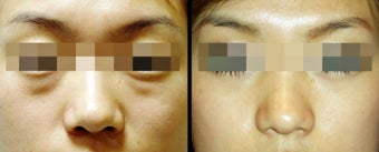 Lower Eyelid(Blepharoplasty) Surgery before 650673