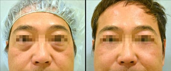 Lower Eyelid(Blepharoplasty) Surgery before 650682