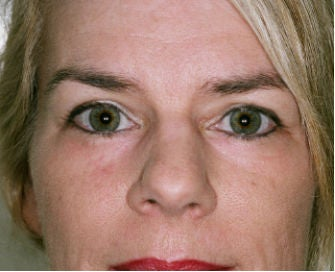 Eyelid rejuvenation after 378932