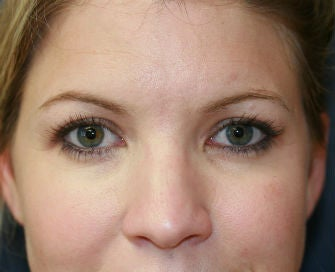 blepharoplasty after 568987