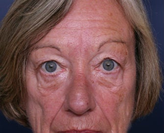 eyelid blepharoplasty before 378922