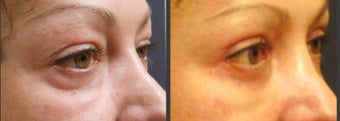 Upper & Lower eyelid surgery before 451813