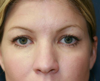 blepharoplasty before 568987
