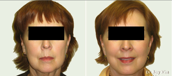 Facelift and Necklift before 273683