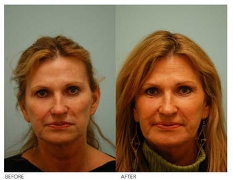 Fat Transfer/Fat Grafting/Facial Rejuvenation before 136361