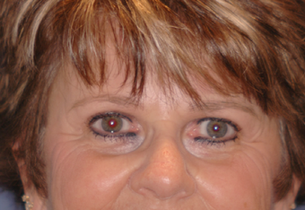 Pretrichial forehead lift and upper blepharoplasty after 377313
