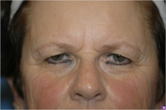 Pretrichial forehead lift and upper blepharoplasty before 377313