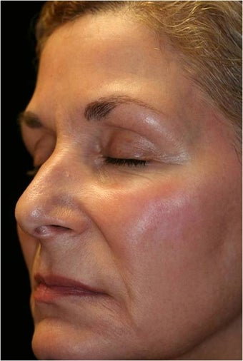 Fraxel - Melasma  after 652383