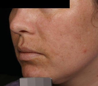 Fraxel - Melasma after 136733