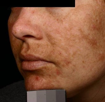 Fraxel - Melasma before 136733