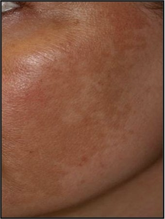 Fraxel - Melasma before 652319