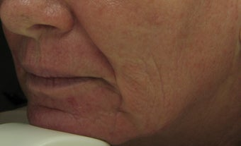 Before and After Fraxel re:pair CO2 laser resurfacing on lips, cheeks, mouth after 65695