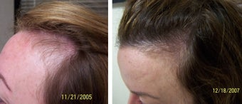 Female medical treatment for hair loss (no surgery) after 369186