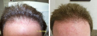 Medical treatment for hair loss (no surgery) before 369178
