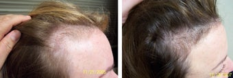 Female medical treatment for hair loss (no surgery)