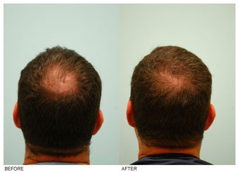 Crown (Vertex) Hair Transplant before 134778
