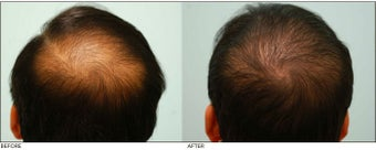 Crown (Vertex) Hair Transplant before 134780