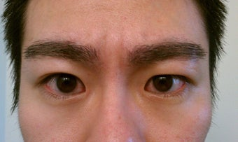 Eyebrow Transplant after 324047