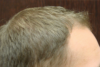 NeoGraft hair transplant after 556379