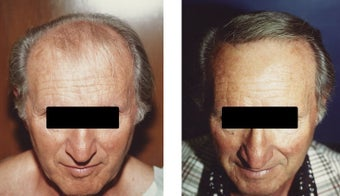 hair transplant before 369171