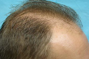 NeoGraft hair transplant before 556379