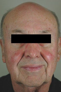 Pulsed Dye Laser Treatment for Rosacea  before 104186