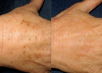 IPL Photofacial Hand Rejuvenation before 271738