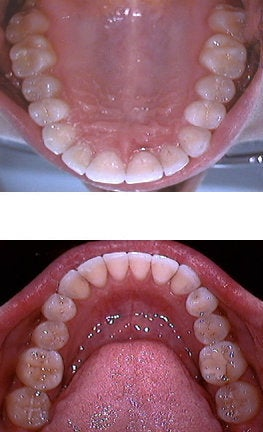 Invisalign after 109380