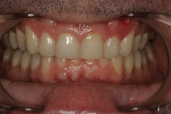 Invisalign Treatment after 92848