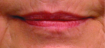 Lip augmentation before 369093