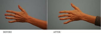 Juvederm to hands before 458715