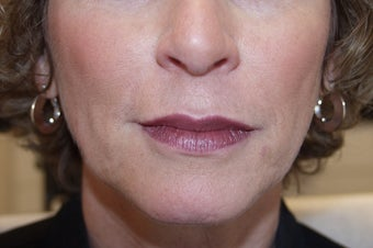 Juvederm before 476833