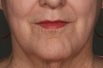 Juvederm Lip Enhancement before 610606