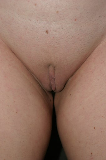 Labiaplasty after 325106