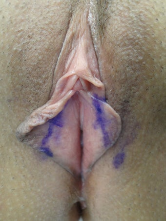 Labia Minora Reducation Surgery before 141022