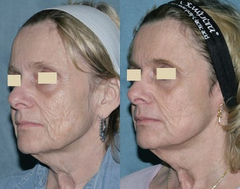Fraxel repair with C02/Erbium lasers for upper lip wrinkles before 104306