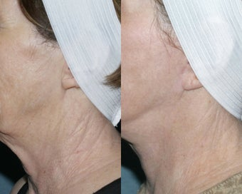 Fraxel repair for neck with laser peel treatment