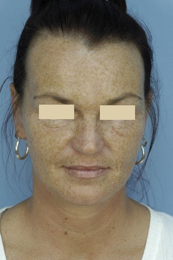 Fractionated CO2 Laser Resurfacing before 135876