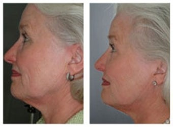 Skin tightening with laser therapy before 6600