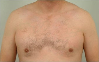 Smart Lipo of the chest after 455693