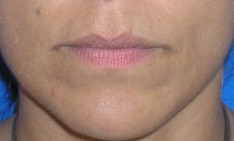 Lip Augmentation before 167640