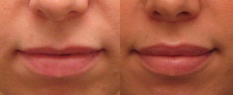Lip Augmentation with Juvederm before 267287