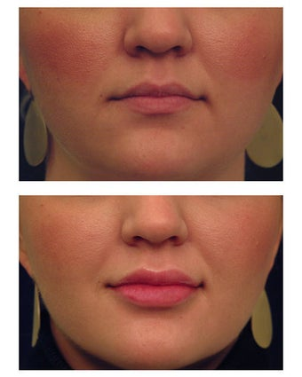 Injectable Filler before 301184