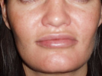 Lip Augmentations after 115571