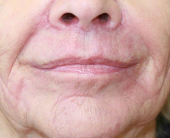 Lip lift, corner of lip lift, and filler around lips after 299921