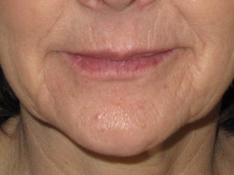 Lip Enhancement after 326039