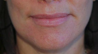 Lip Augmentation after 399260