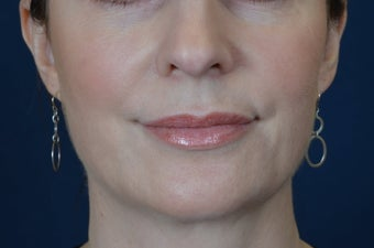 Lip Augmentation with Filler after 488200